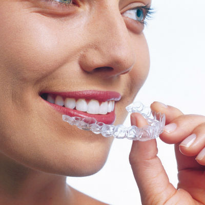 Invisible braces with Perfect Smile Studios