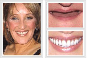 best before and after photos veneers