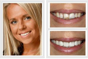 best before and after photos dentures
