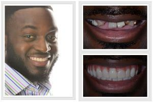 best before and after photos braces