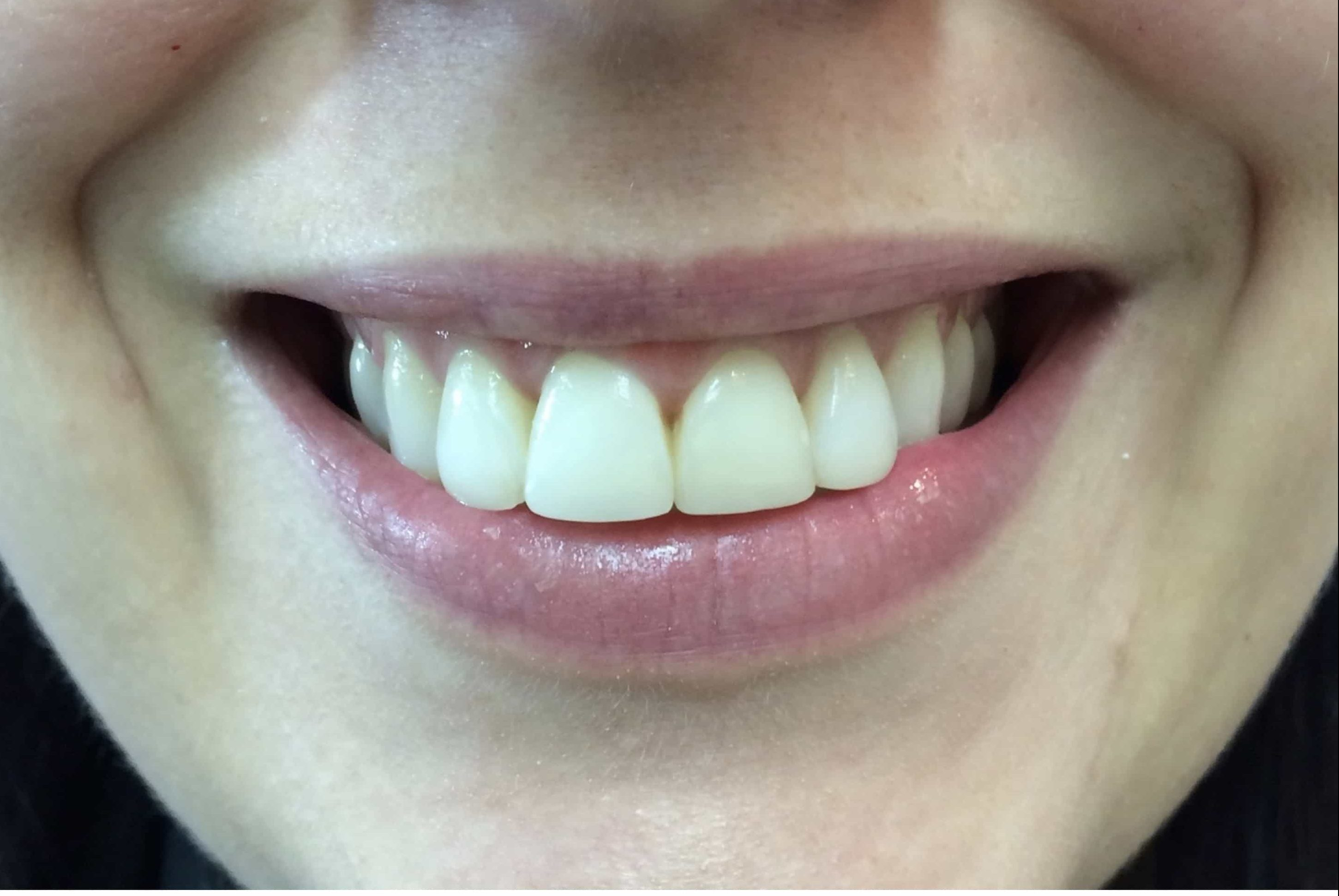 Keep your teeth healthy with Perfect Smile