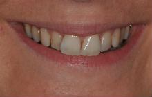 NATASHA C CROOKED TEETH / CROWDING BEFORE PHOTOS TPS LONDON, DISCOLOURED TEETH BEFORE PHOTOS
