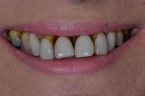 Before Gum Treatment from Perfect Smile