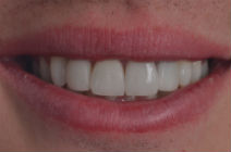 GREG H DISCOLOURED TEETH AFTER PHOTOS, OLD CROWNS - AFTER PHOTOS