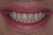 GREG H DISCOLOURED TEETH BEFORE PHOTOS, OLD CROWNS - BEFORE PHOTOS