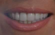 LEANNE S CROOKED TEETH / CROWDING AFTER PHOTOS TPS LONDON, DISCOLOURED TEETH AFTER PHOTOS