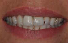 LEANNE S CROOKED TEETH / CROWDING BEFORE PHOTOS TPS LONDON, DISCOLOURED TEETH BEFORE PHOTOS