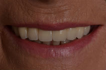 JANE W DISCOLOURED TEETH AFTER PHOTOS, GAPS - AFTER PHOTOS