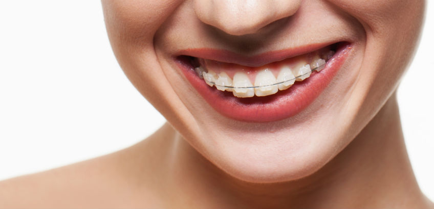 The very best cosmetic orthodontics with fixed or invisible braces solutioingenieria Choice Image