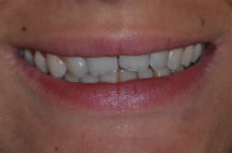 JESSICA H CROOKED TEETH / CROWDING AFTER PHOTOS