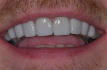 REECE F CROOKED TEETH / CROWDING AFTER PHOTOS TPS LONDON, DISCOLOURED TEETH AFTER PHOTOS