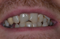 REECE F CROOKED TEETH / CROWDING BEFORE PHOTOS TPS LONDON, DISCOLOURED TEETH BEFORE PHOTOS