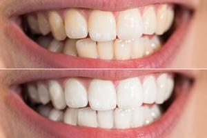 Better Dental Veneers