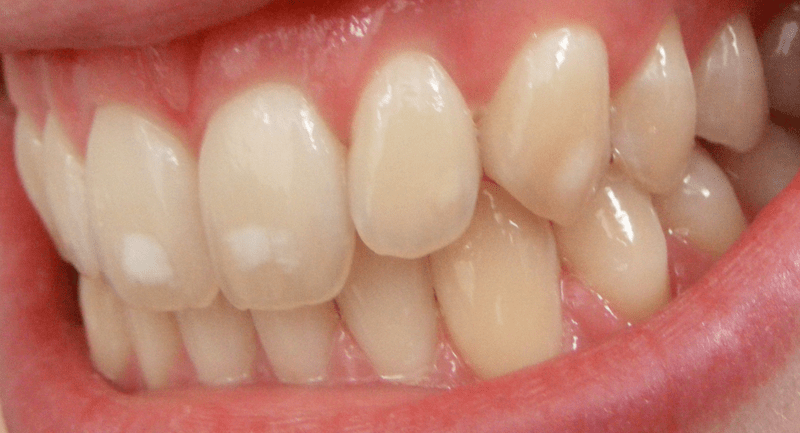 Fluorosis treatment at The Perfect Smile