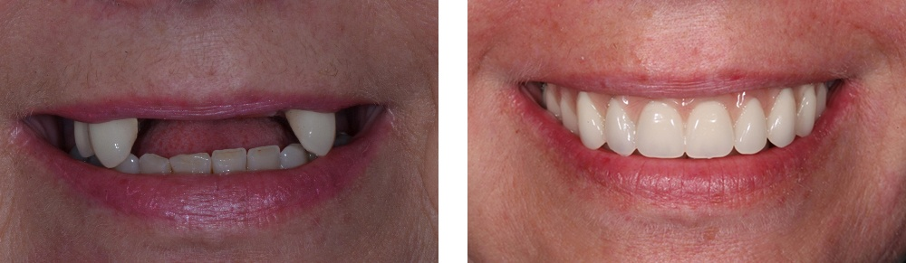 Before and after photo of dental implant treatment