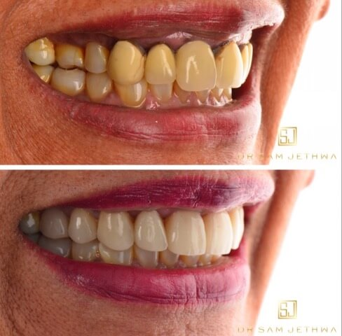 Dr Sam Jetwa's Before and After Dental treatment Case 1