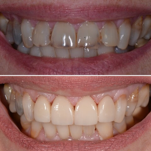 Dr Sam Jetwa's Before and After Dental treatment Case 10