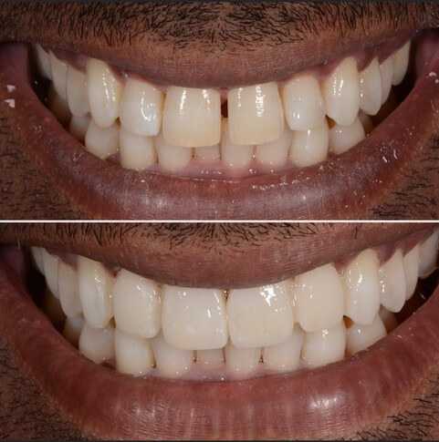 Dr Sam Jetwa's Before and After Dental treatment Case 11