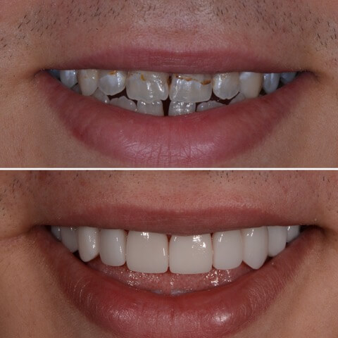 Dr Sam Jetwa's Before and After Dental treatment Case 12