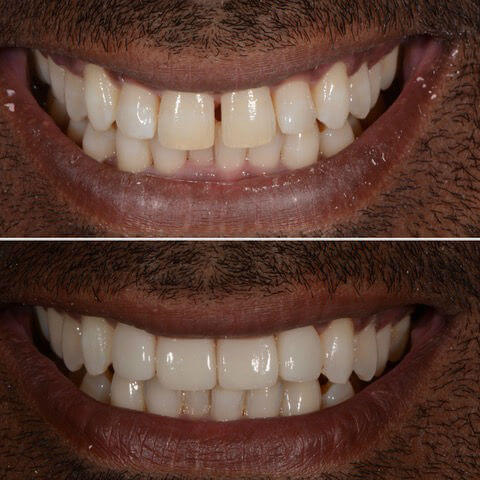 Dr Sam Jetwa's Before and After Dental treatment Case 13