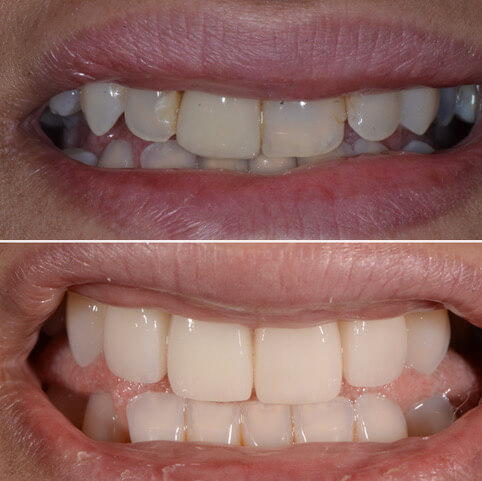 Dr Sam Jetwa's Before and After Dental treatment Case 14