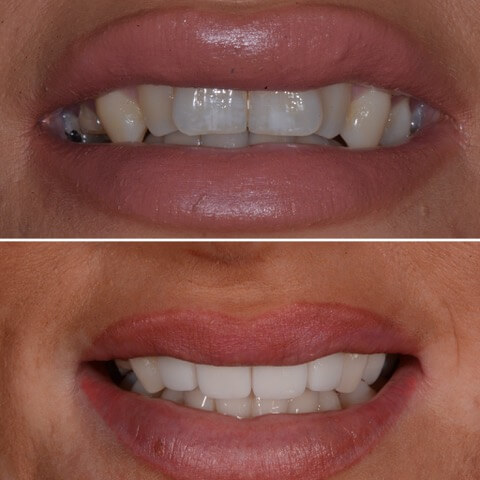Dr Sam Jetwa's Before and After Dental treatment Case 15