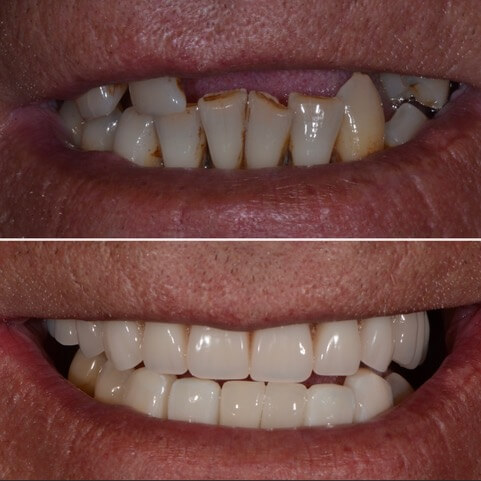 Dr Sam Jetwa's Before and After Dental treatment Case 17