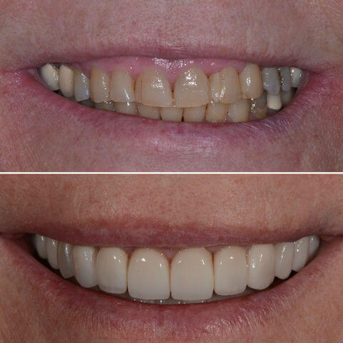 Dr Sam Jetwa's Before and After Dental treatment Case 18