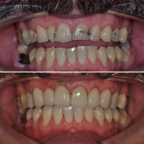 Dr Sam Jetwa's Before and After Dental treatment Case 2