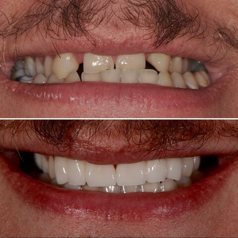 Dr Sam Jetwa's Before and After Dental treatment Case 3