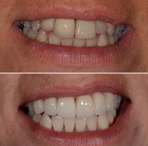 Dr Sam Jetwa's Before and After Dental treatment Case 4