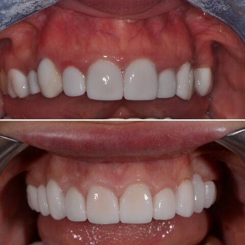 Dr Sam Jetwa's Before and After Dental treatment Case 5