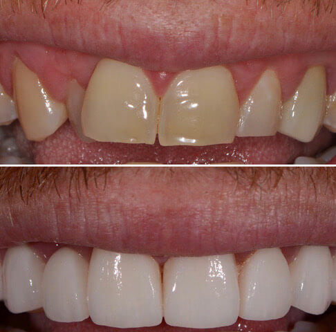 Dr Sam Jetwa's Before and After Dental treatment Case 6