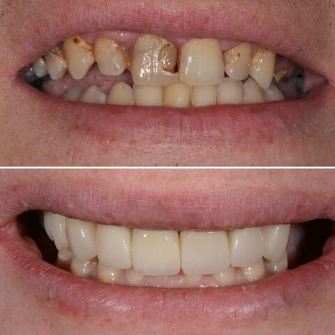 Dr Sam Jetwa's Before and After Dental treatment Case 7