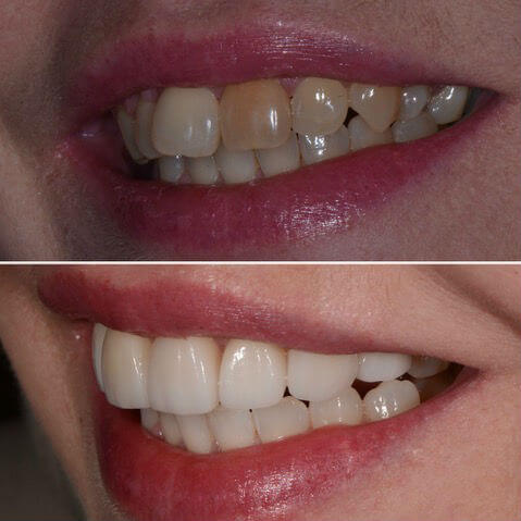 Dr Sam Jetwa's Before and veneers