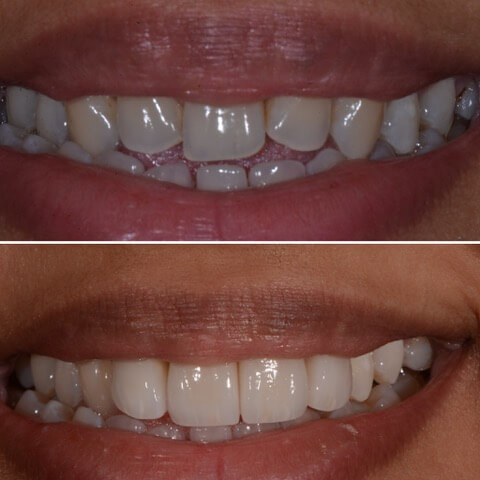 Dr Sam Jetwa's Before and After Dental treatment Case 9
