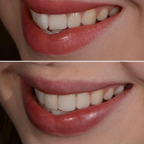 Dr Sam Jetwa's Before and After Dental treatment Case 19