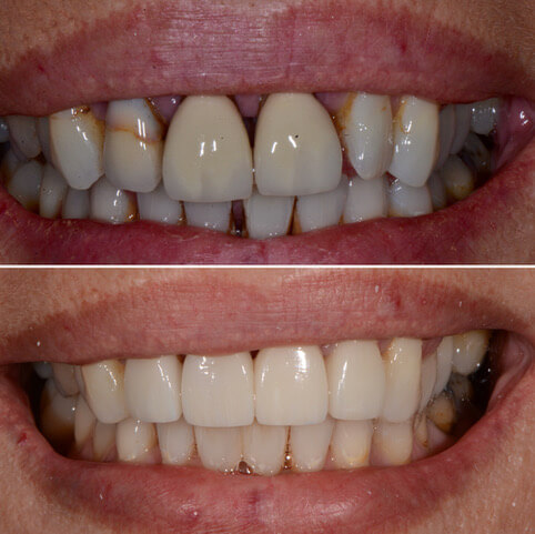 Dr Sam Jetwa's Before and After Dental treatment Case 20