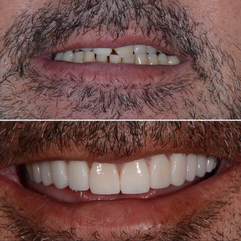 Dr Sam Jetwa's Before and After Dental treatment Case 21