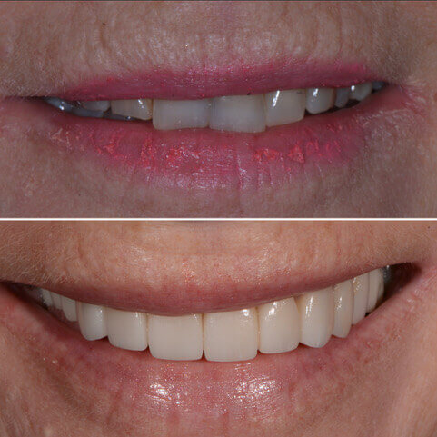 Dr Sam Jetwa's Before and After Dental treatment Case 22