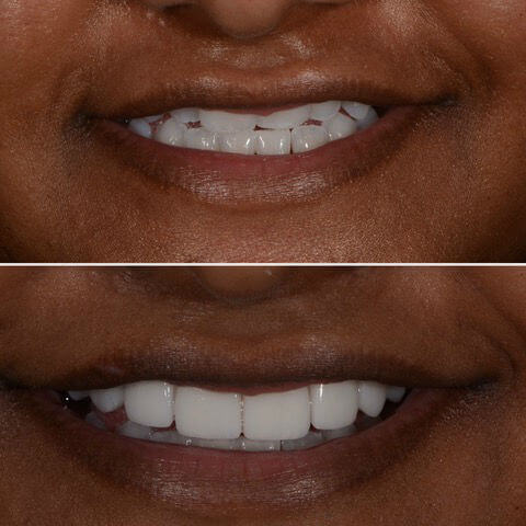 Dr Sam Jetwa's Before and After Dental treatment Case 23