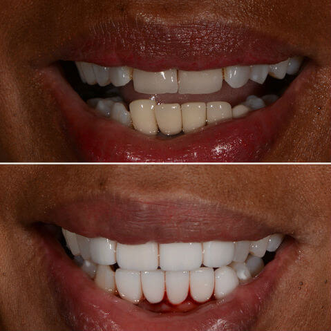 Dr Sam Jetwa's Before and After Dental treatment Case 24