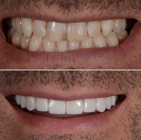 Dr Sam Jetwa's Before and After Dental treatment Case 25