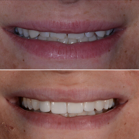 Dr Sam Jetwa's Before and After Dental treatment Case 26