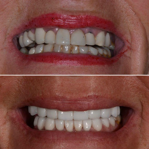 Dr Sam Jetwa's Before and After Dental treatment Case 27