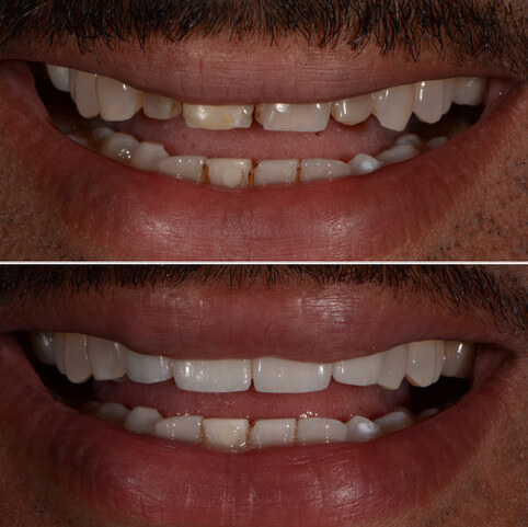 Dr Sam Jetwa's Before and After Dental treatment Case 28