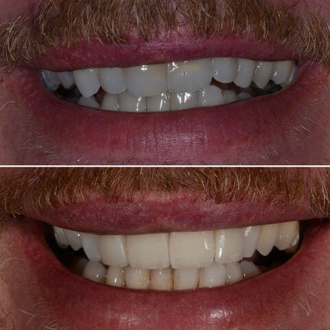 Dr Sam Jetwa's Before and After Dental treatment Case 29