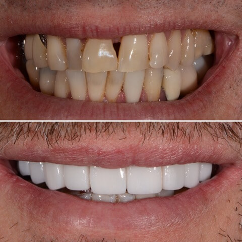 Dr Sam Jetwa's Before and After Dental treatment Case 30