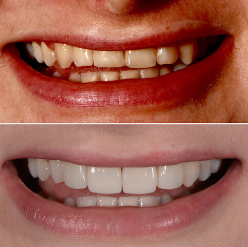 Dr Sam Jetwa's Before and After Dental treatment Case 32