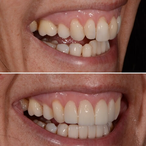 Dr Sam Jetwa's Before and After Dental treatment Case 33